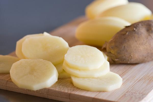 Trắng da toàn thân hoàn hảo chỉ bằng khoai tây